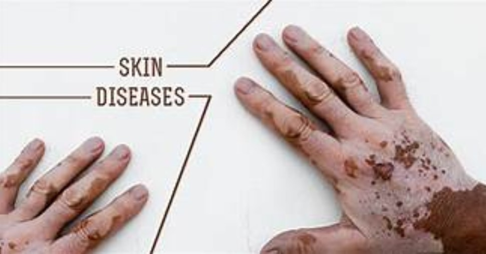 Types of Skin Diseases That May Attack Human